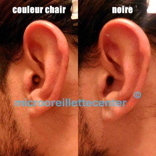 Micro oreillette couleur chair à l'oreille